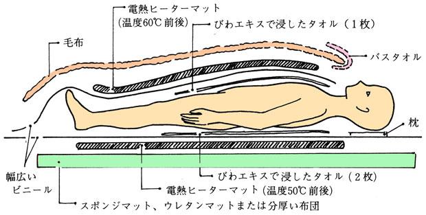 全身温熱法セット図